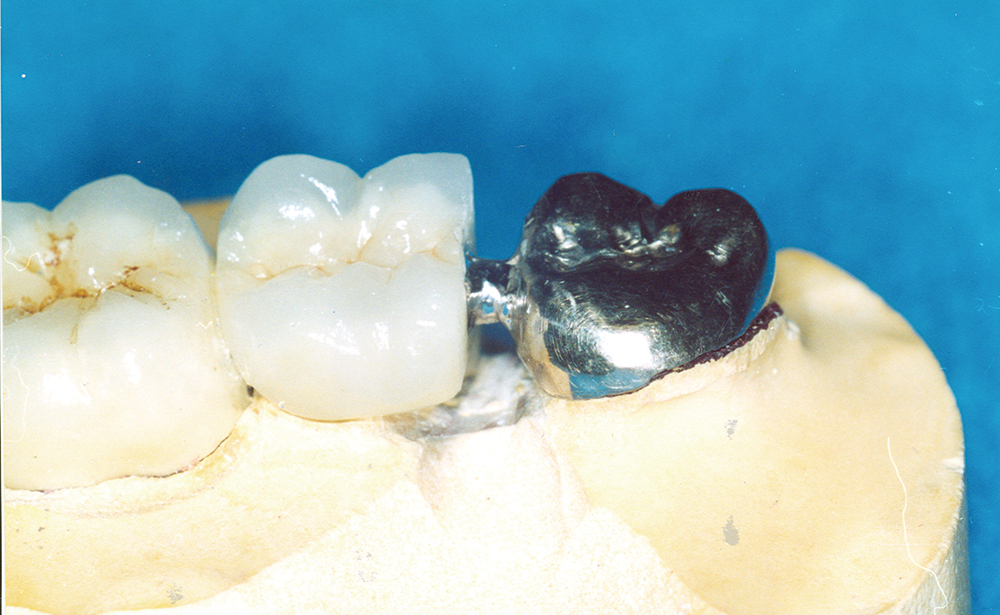 Molar Laser Attached to Bridge